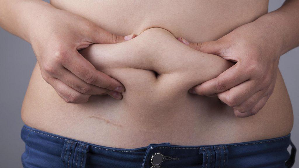 abdomenplastia