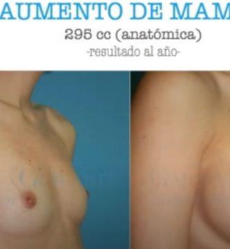 cirugia mamas 3738491