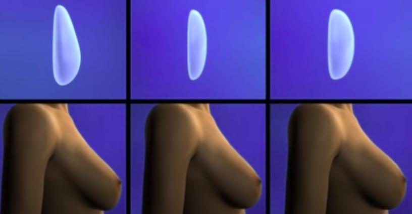 mamoplastia-2021460