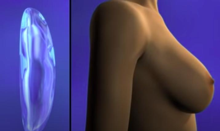 mamoplastia1-1749274